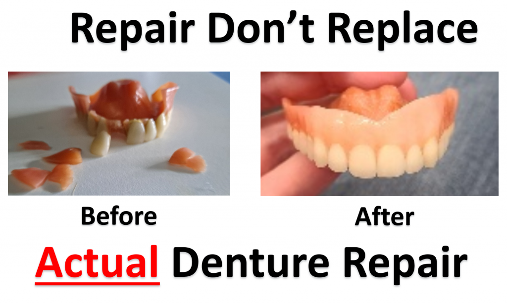 don't replace your denture, get a same day denture repair near Youngstown ohio